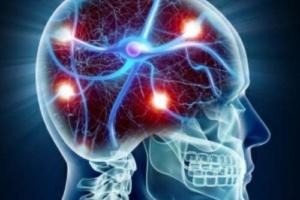 Νευρικό σύστημα σε κατάσταση στρες